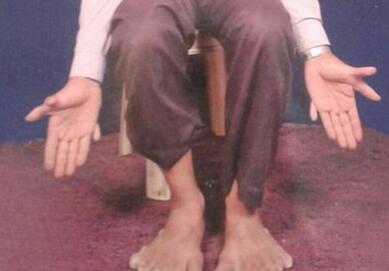 印度男子28根手指脚趾